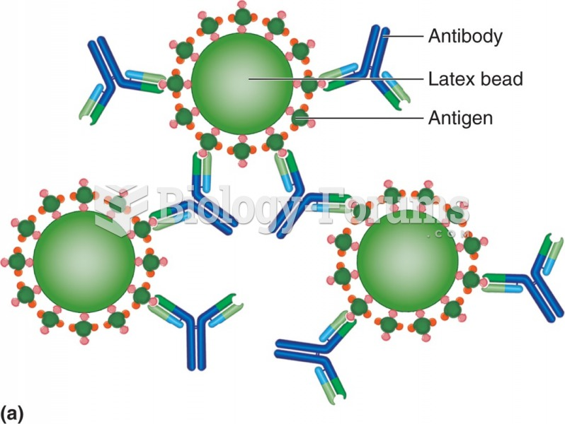 An agglutination reaction. Antigen-coated latex beads are held together by antibody. In a direct ...