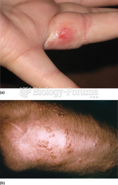 a) Type IV hypersensitivity reaction, contact dermatitis as the result of reaction to the nickel in ...