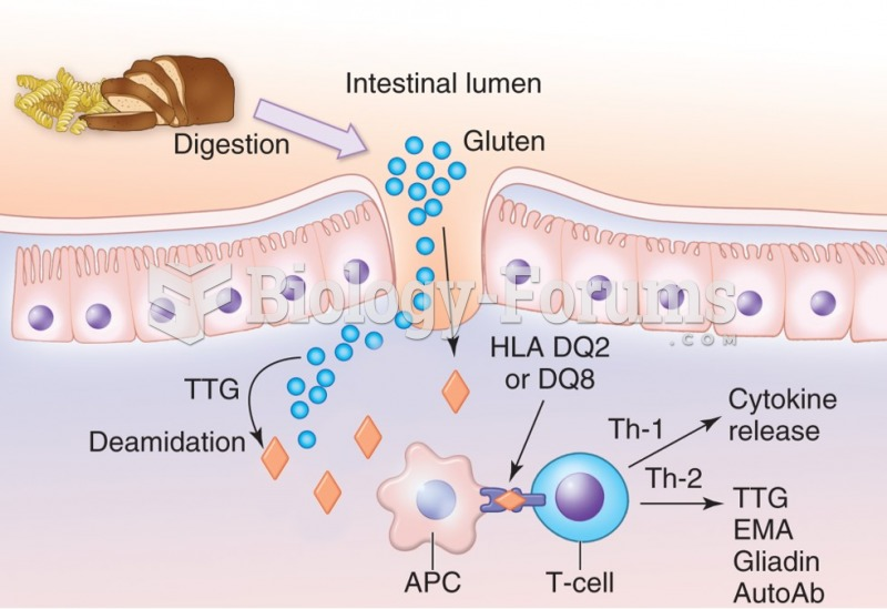 Pathophysiology of celiac disease. In susceptible individuals, gluten-containing foods are digested, ...