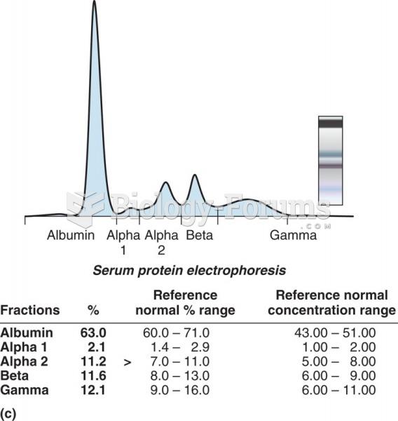 Electrophoresis gel in a densitometer. SPE densitometry showing a normal pattern.