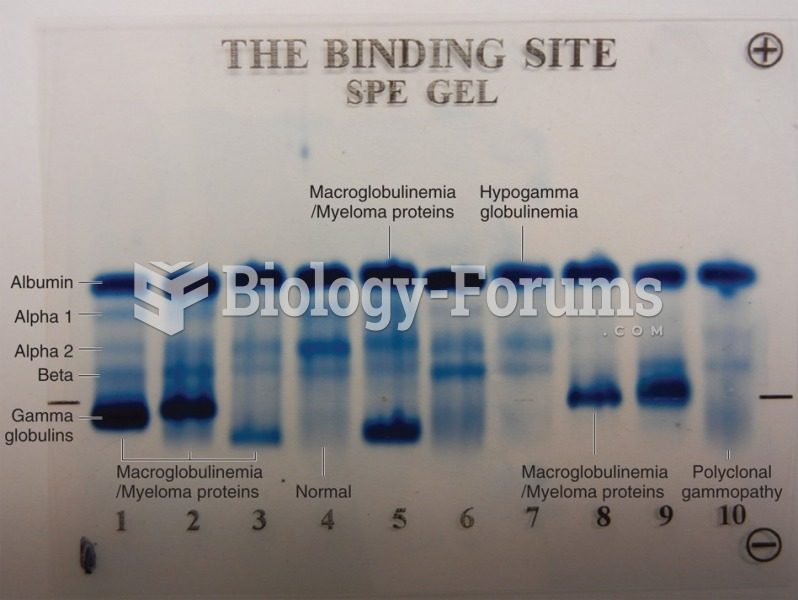 Serum protein electrophoresis gel of 10 sera. Lanes 1, 2, 3, 5, 8, and 9 show evidence of an ...