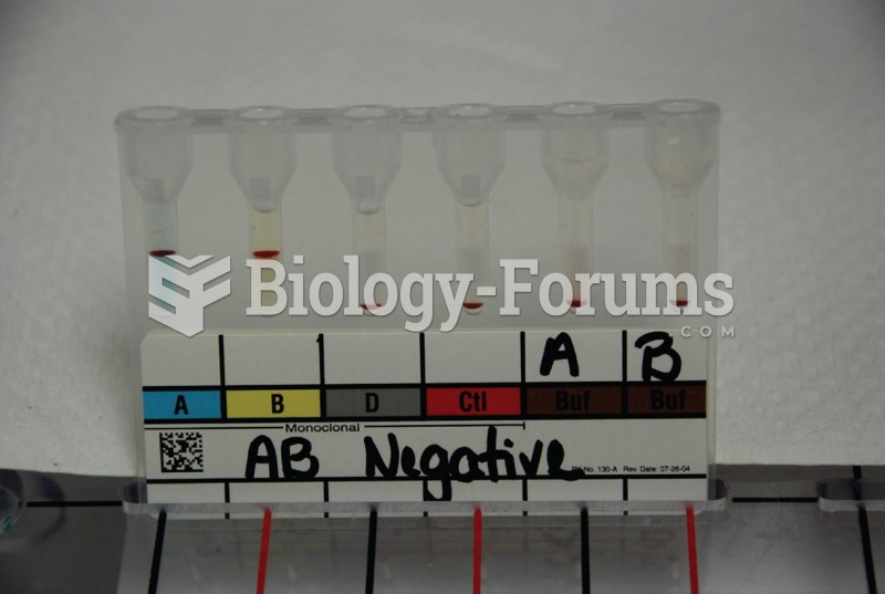 ABO and Rh grouping using gelatin centrifugation. The blood sample above is AB negative as indicated ...
