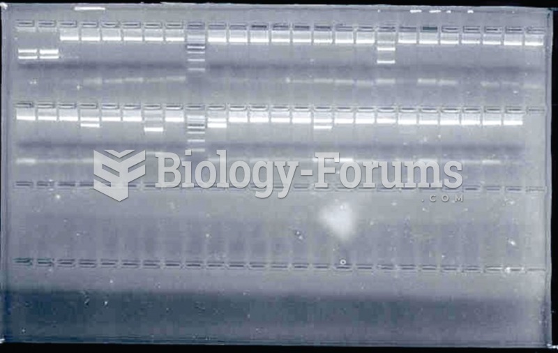 DNA fragments visualized by gel electrophoresis on agarose gel. DNA fragments corresponding to the ...