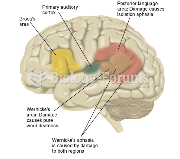 Locations of Broca's Area, Wernicke's Area, and Associated Areas Involved in Language Deficits