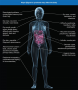 Physical features of Sjögren's syndrome. Source: Ways Sjogren's Syndrome May Affect the ...