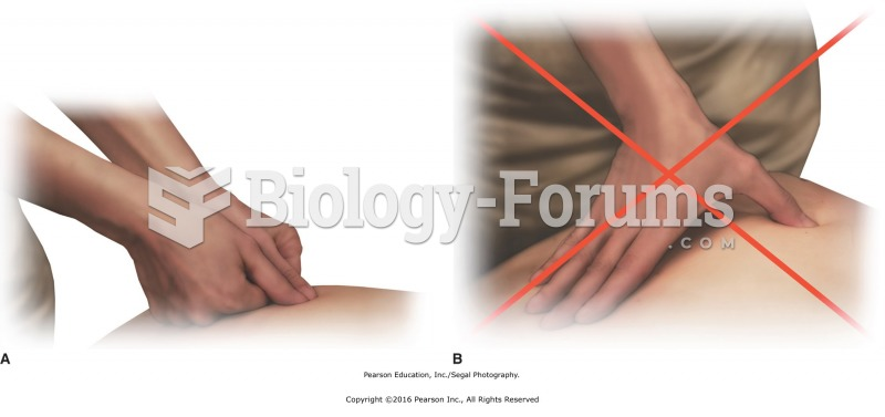 Stacking the joints. A. Correct thumb–wrist alignment for applying direct pressure. B. Incorrect ...