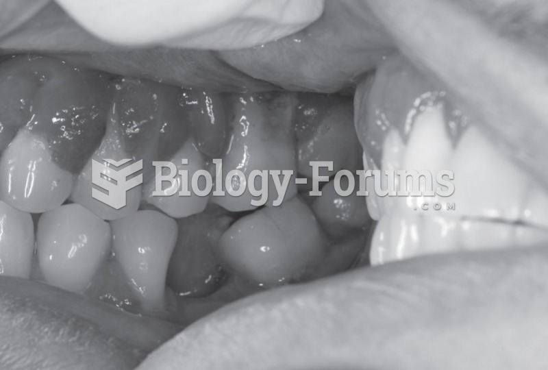 Patient diagnosed with type 2 diabetes mellitus. Periodontal examination revealed deep periodontal ...