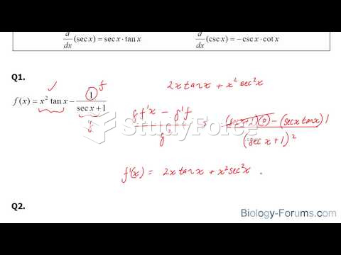 How to find derivatives of reciprocal trigonometric functions