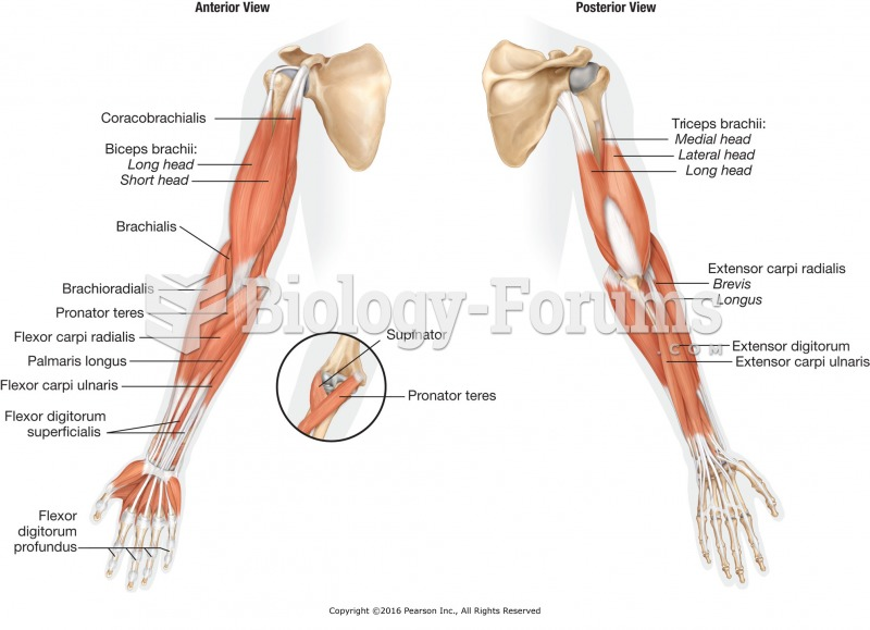 Major muscles of the arm.
