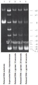 Action of type I and type II topoisomerases, as shown by gel electrophoresis