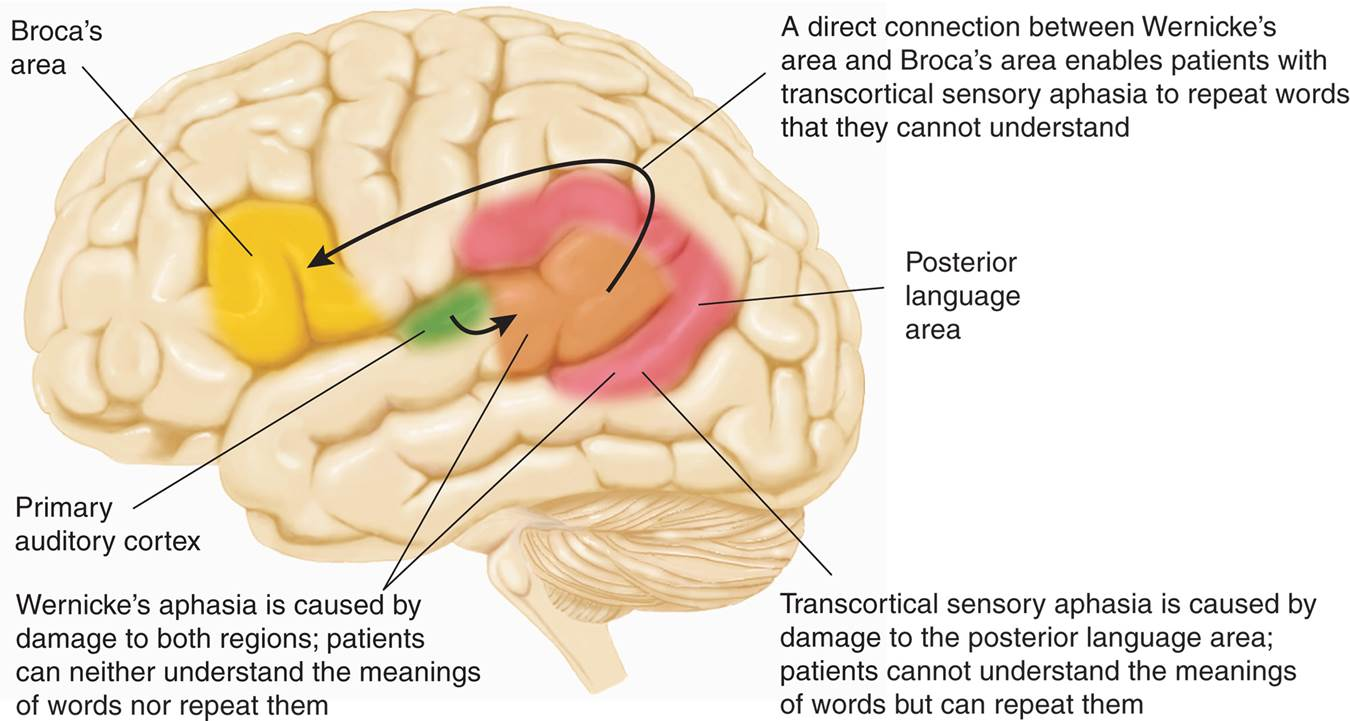 Transcortical Sensory Aphasia and Wernicke's Aphasia - Biology ...