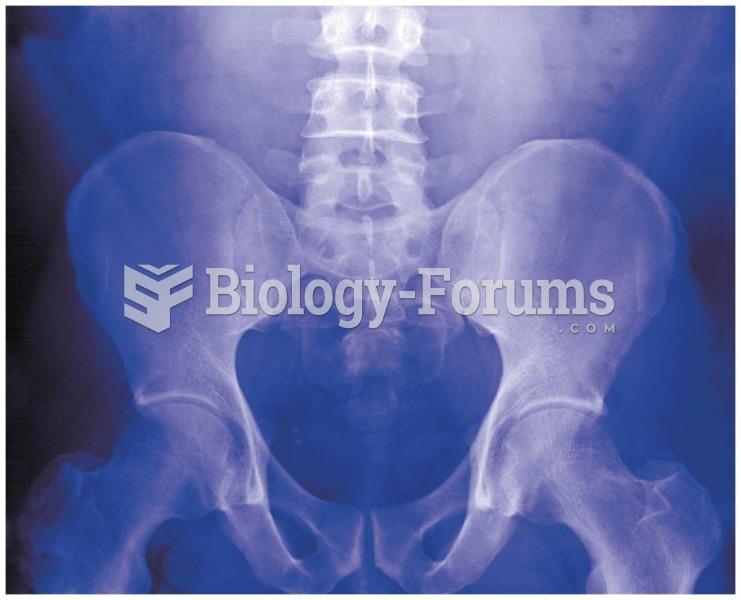 Vitamin D plays a major role in bone health