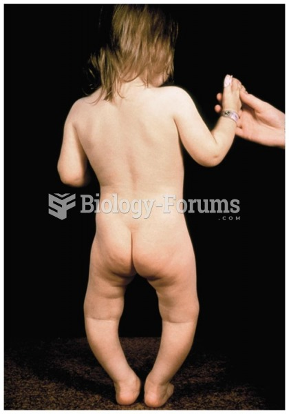 A child with rickets