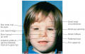 Fetal Alcohol Syndrome Children born with fetal alcohol syndrome often have facial abnormalities