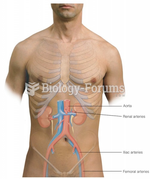 Auscultatory areas for vascular sounds