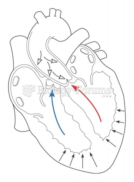 Afterload is the pressure that the ventricles must overcome in order to open the aortic and pulmonic