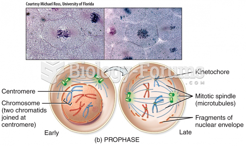 Mitotic Phase: Prophase