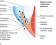 The Pathophysiology of Glaucoma (A) Slowing Rising Intraocular Pressure (I O P)