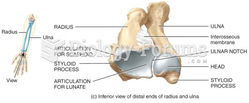 Inferior view of distal ends of radius and ulna