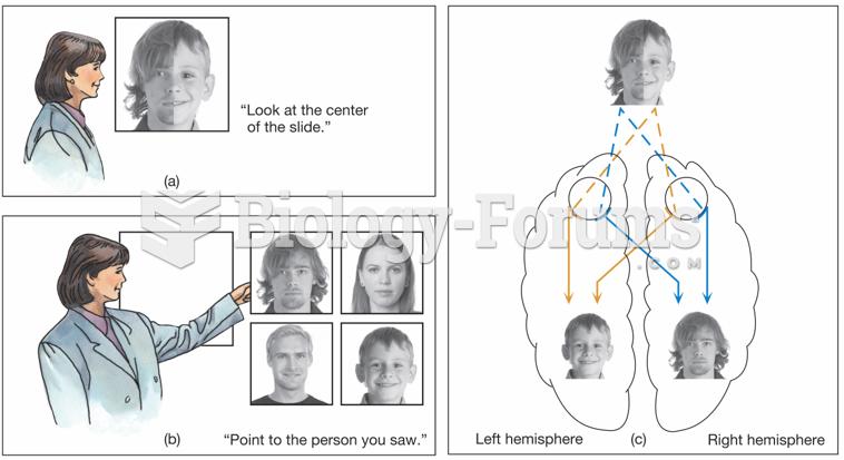 Split-brain patients were shown composite photographs