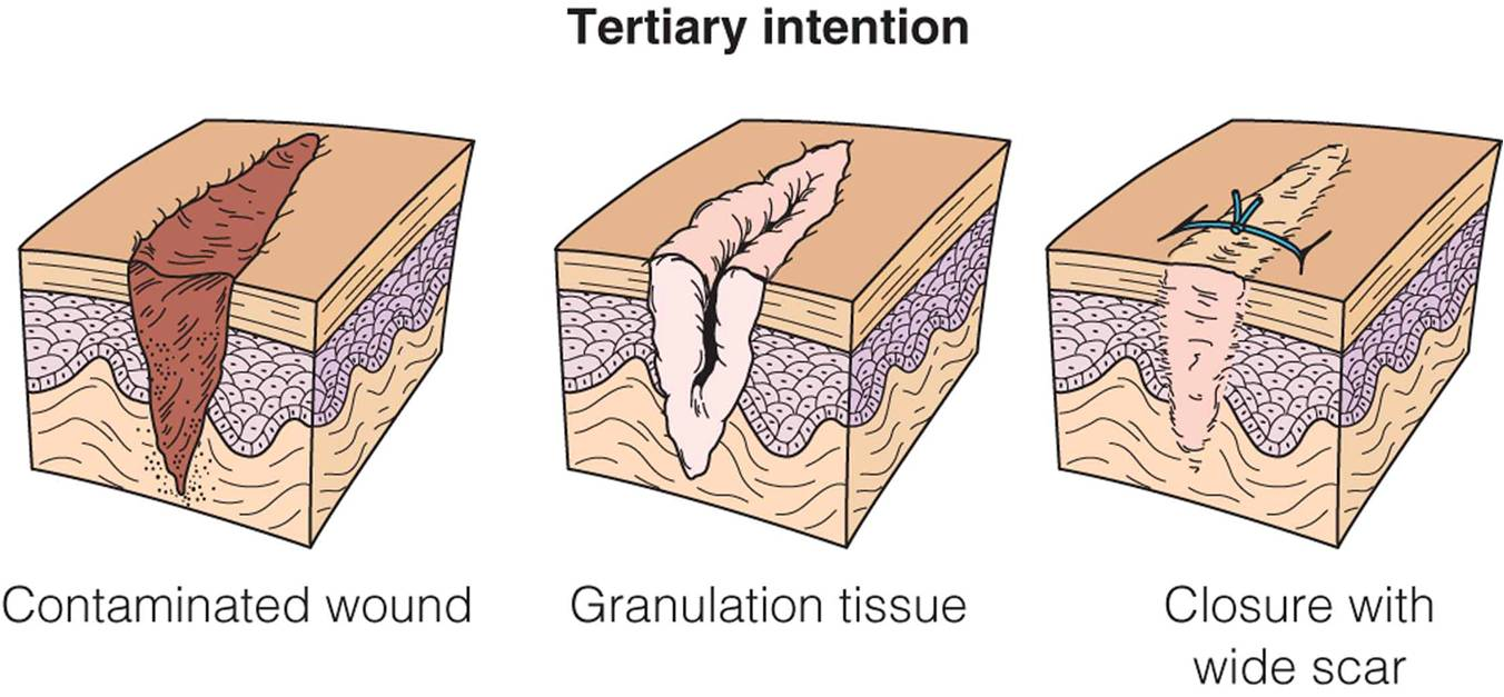 Wound healing by tertiary intention.