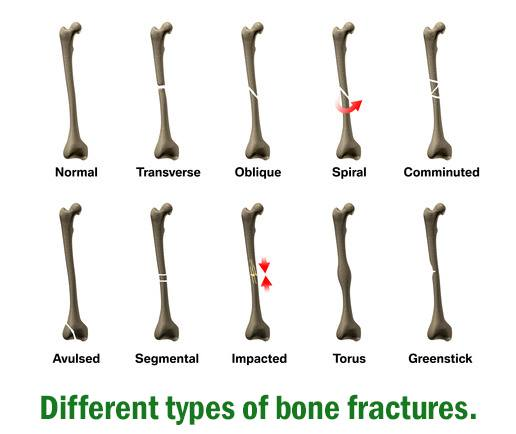 different types of bone fractures Distal radius fractures can occur in many different ways and the most common types are colles fractures, smith fractures, barton fractures, and chauffer's fractures scaphoid fractures when wrist fractures are limited to those which include only the carpal bones, the scaphoid is, by far, the most commonly fractured of the carpals.