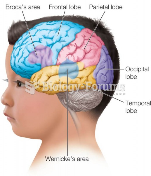 Illustration of the Brain  Lobes Showing Location of Broca's Area and Wernicke's Area