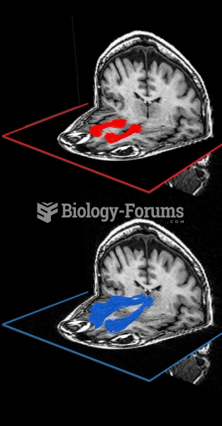 Brain scans showing the white-matter pathways involved in everyday learning: