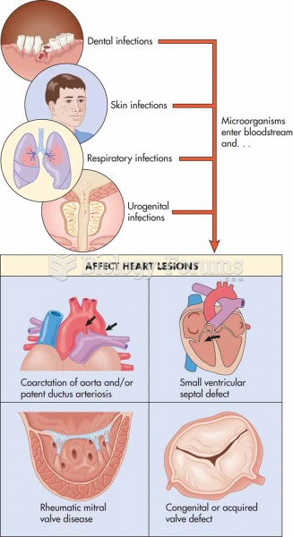 How microorganisms enter bloodstream and affect heart lesions, which could result in bacterial endoc