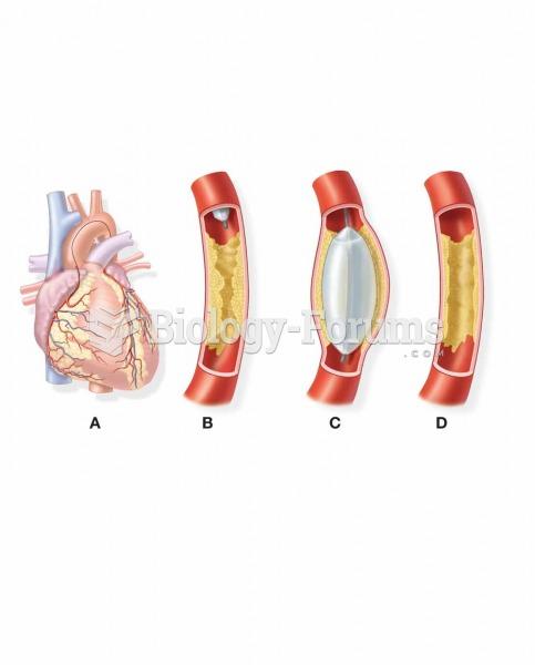 Balloon angioplasty. (A) The balloon catheter is threaded into the affected coronary artery. (B) The
