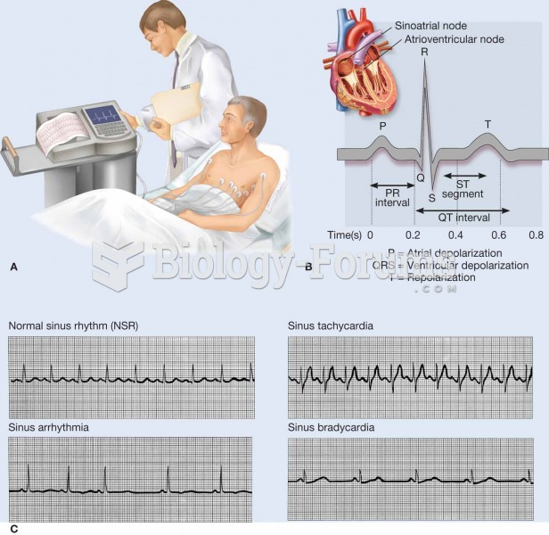 An electrocardiogram (ECG, EKG) is a commonly used procedure in which the electrical events associat