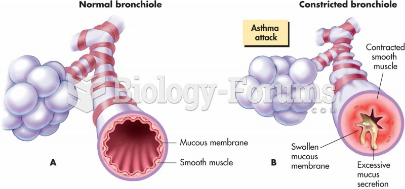 Changes in bronchioles during an asthma attack: (A) normal bronchiole and (B) in asthma attack.