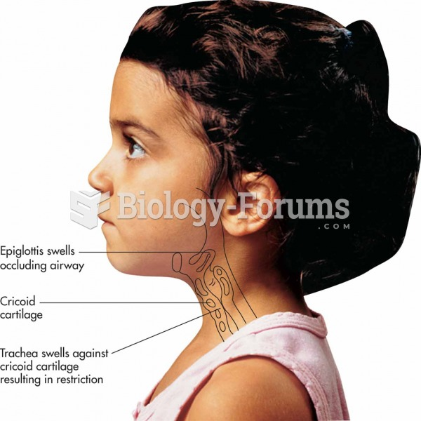 Two important changes occur in the upper airway in croup:The epiglottis swells, thereby occluding th