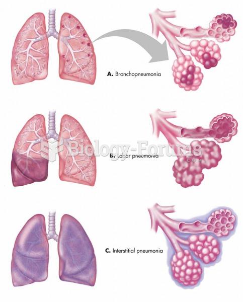 (A) Bronchopneumonia with localized pattern. (B) Lobar pneumonia with a diffuse pattern within the l