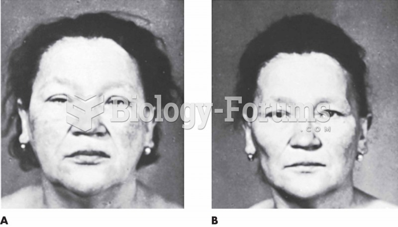 (A) A 62-year-old patient with myxedema exhibiting marked edema of the face and a somnolent look. Th