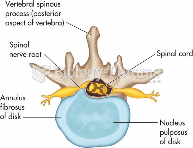 Herniated intervertebral disk: the herniated nucleus pulposus is applying pressure