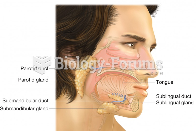 The salivary glands, parotid, sublingual, and submandibular. This image shows the position of each g