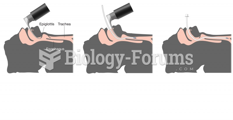 Endotracheal intubation. First, a lighted scope is used to identify the trachea from the esophagus.