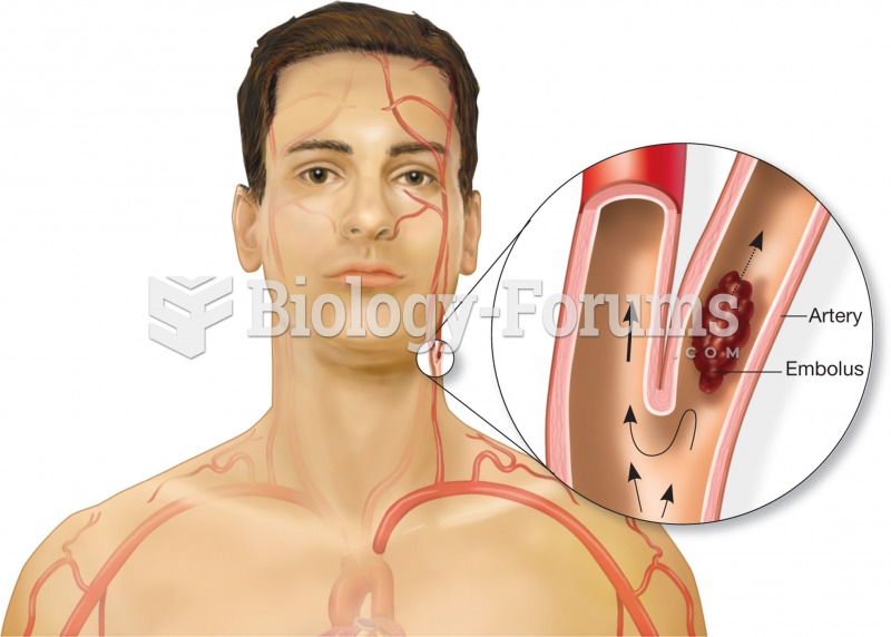 Illustration of an embolus floating in an artery. The embolus will become lodged in a blood vessel t