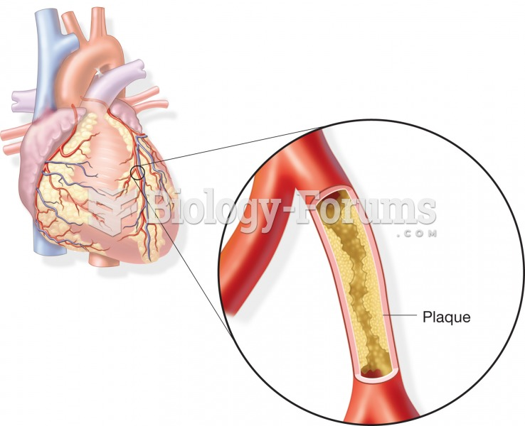 coronary heart disease essays View and download heart disease essays examples also discover topics, titles, outlines, thesis statements, and conclusions for your heart disease essay.