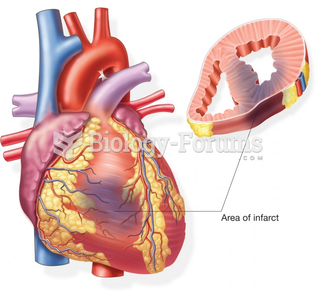 External and cross-sectional view of an infarct caused by a myocardial infarction.