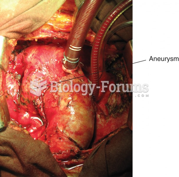 Aneurysm. Photograph of the aorta, the large blood vessel arising from the heart, with a large bulge