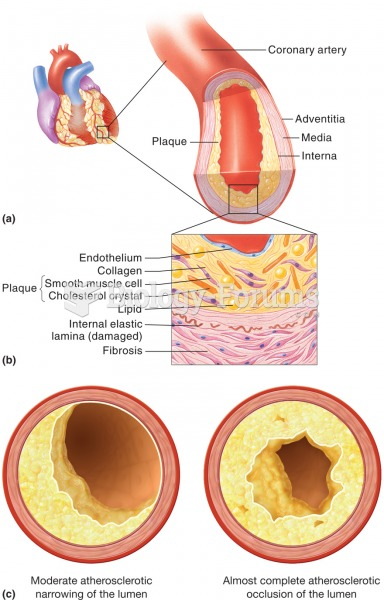 Atherosclerosis. (a) A sectioned coronary artery that exhibits an accumulation of fatty plaque, whic