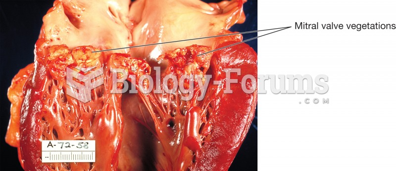 Endocarditis. The human heart has been sectioned to reveal the left ventricle and origin of the aort