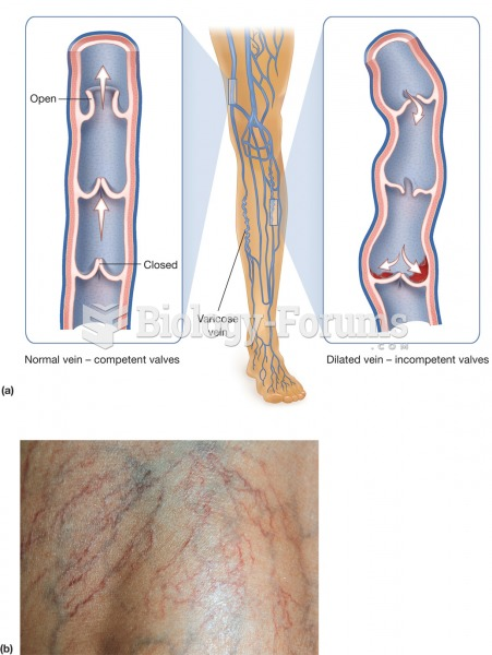 Varicosis. (a) Varicose veins develop due to the failure of valves in the superficial veins of the l
