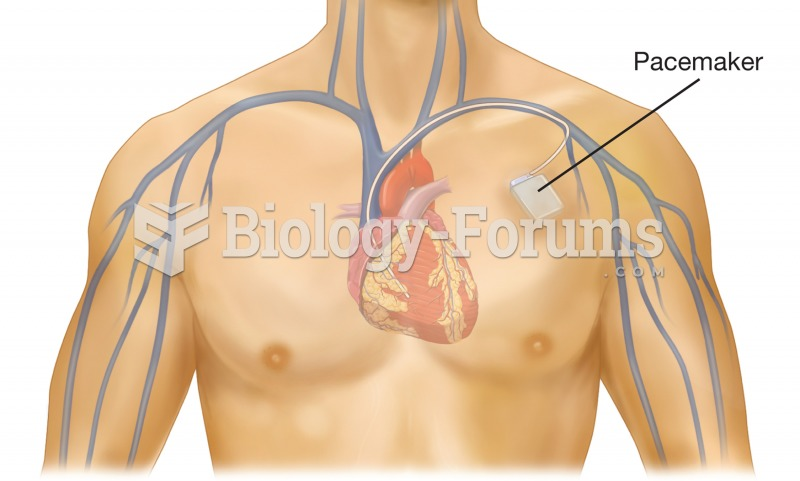 Cardiac pacemaker. The pacemaker device is implanted beneath the skin near the heart, and the electr