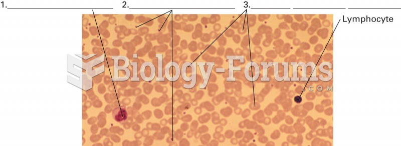 A blood smear. The smear reveals representative cells from each formed element group: red blood cell