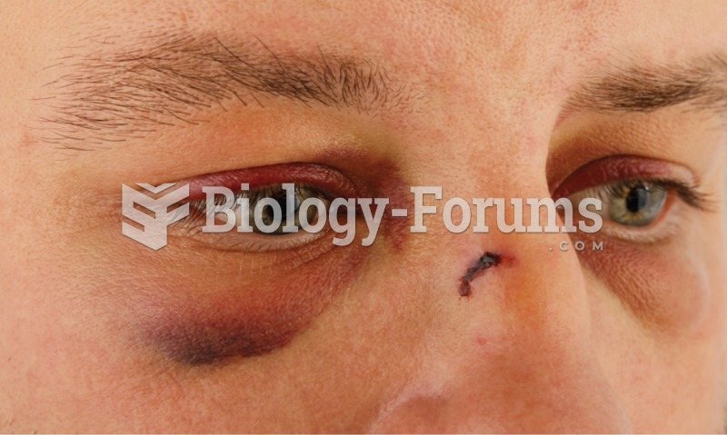 Hematoma. A hematoma around the right eye caused by an injury. A hematoma is the result of bleeding