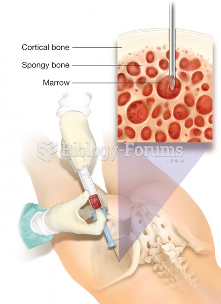 Bone marrow transplant. A bone marrow transplant is usually extracted from red bone marrow within a