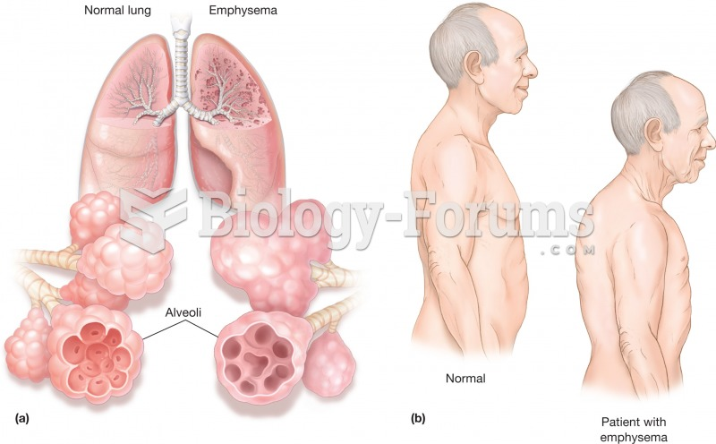 Emphysema. (a) Illustration comparing normal lungs and emphysemic lungs. The inserts illustrate how